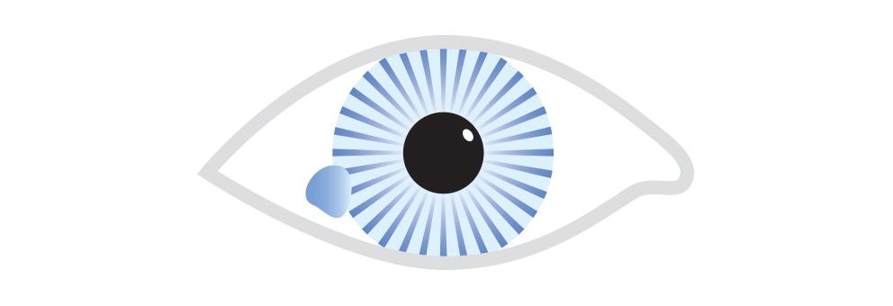 Ocular Surface Tumours Brisbane Dr Brendan Cronin Icon.jpg