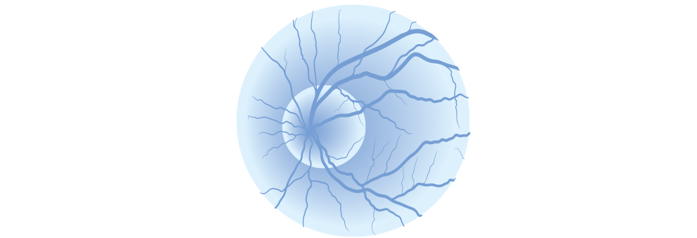 Glaucoma Brisbane Dr Brendan Cronin Icon.jpg