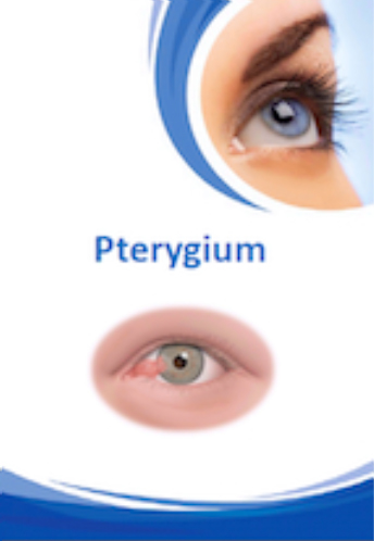 Pteryigum Brochure for Brisbane Ophthalmologist Dr Brendan Cronin  Queensland Eye Institute.
