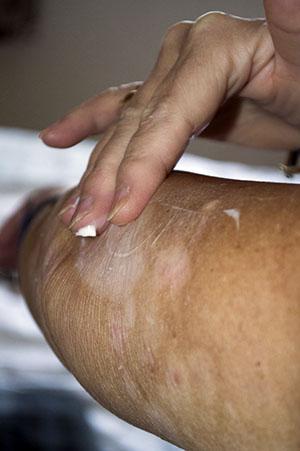 eczema_pg.jpg