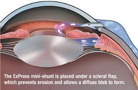 images - glaucoma.jpeg