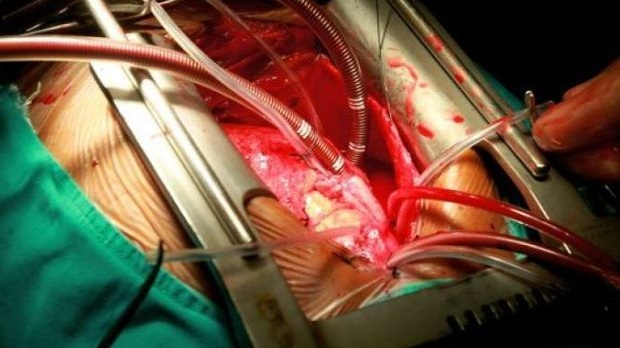 open_heart_surgery_AFP+%281%29.jpg