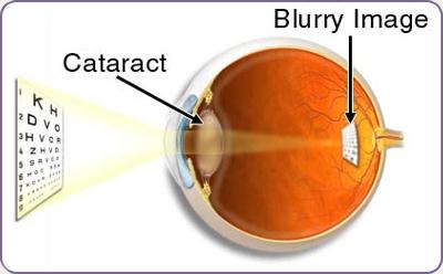 img-cataract.jpg