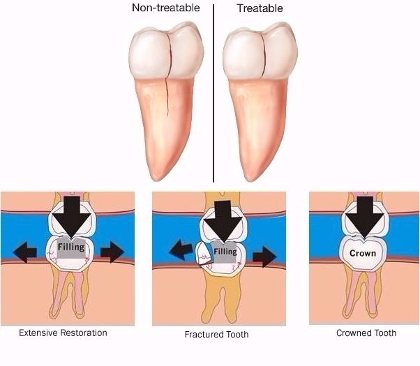 cracked-teeth.jpg