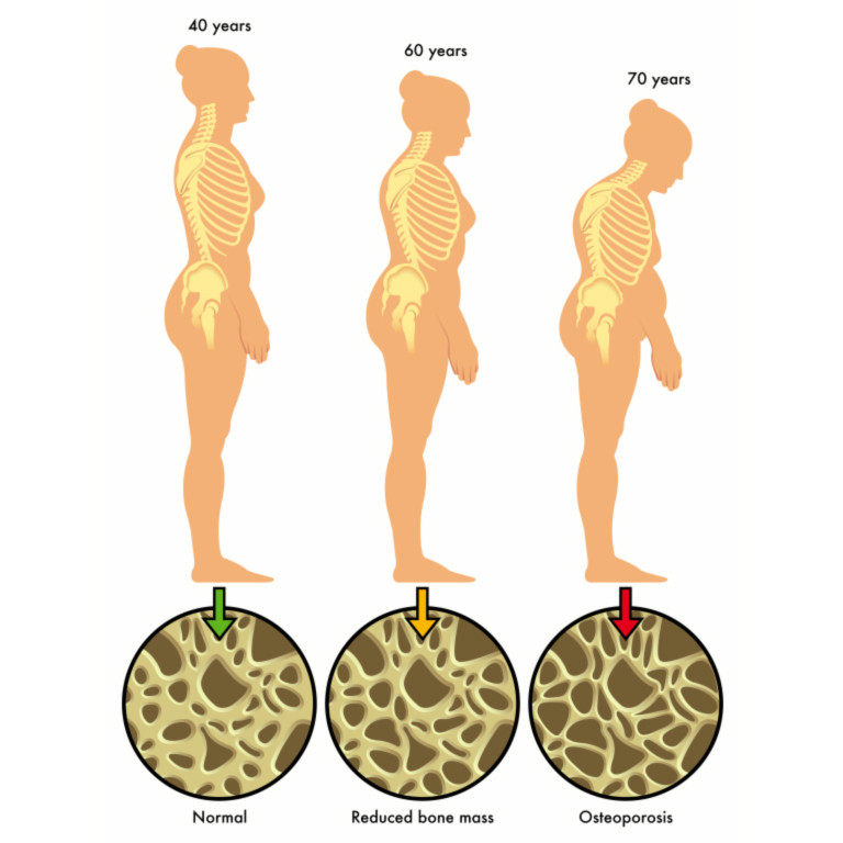 osteoporosis_age_Illustration.jpg