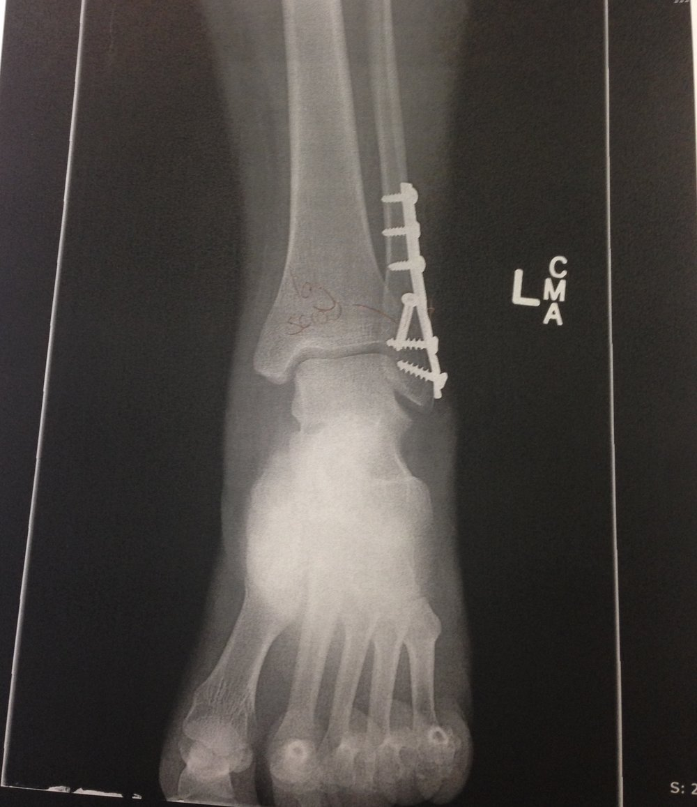 The x-ray of my fibula post surgery