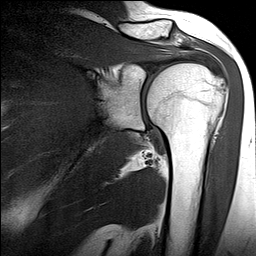 My shoulder scan