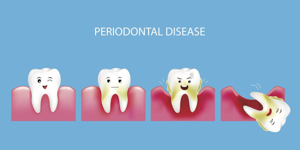 Periodontal - Kids Pic of Tetth.jpg