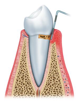 Periodontal - Milk Tooth.jpg