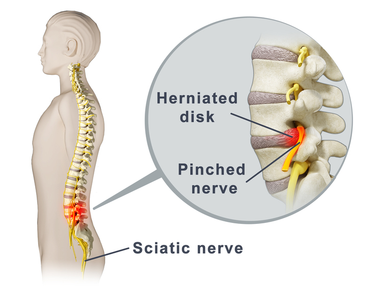 Pinched nerves can result in severe low back pain and neck pain, as well as arm pain and leg pain
