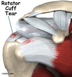 rotator_cuff_tear.jpg