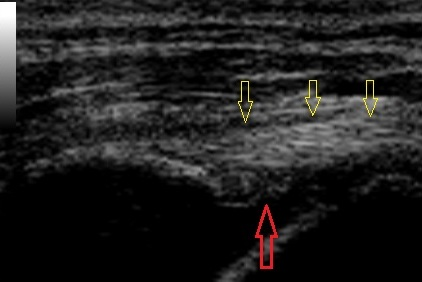 the same tendon 8 weeks after injection with stem cells.  the red arrow shows the location where the tear used to be