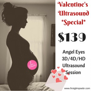 Valentine's Day3D_4D_HD Ultrasound Special-2
