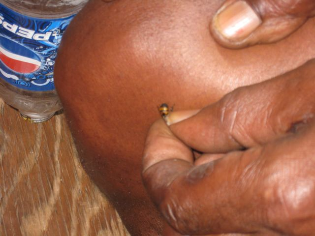 Cuz getting bee sting relief