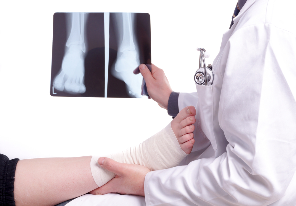 manhattan podiatrist treats foot stress fracture