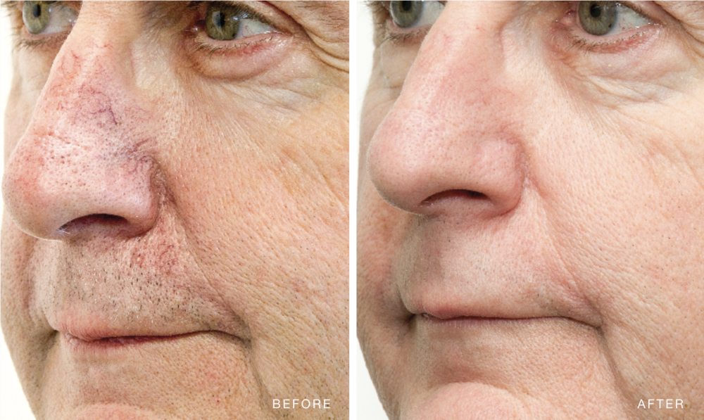 01. BBL™ Corrective - Worried your freckles, age spots or rosacea make you look less radiant and older? With BBL™ they will be a thing of the past!BBL sets a new standard in treating skin conditions associated with aging, acne, loss of firmness, unwanted hair, and sun damage.BBL is the world's most powerful IPL (Intense Pulsed Light) device on the market. It sets new standards in treating skin conditions associated with aging, active life-styles, and sun damage.The light energy delivered by BBL will gently heat the upper layers of your skin. The heat absorbed by the targeted areas will stimulate your skin cells to regenerate. This process will restore your skin to its natural beauty, making it clearer, smoother, vibrant and younger looking.BBL energy allows your physician to treat age and sun spots, small facial veins, and many other skin conditions. Your physician's treatment plan will be tailored to match your skin type and your desired results. BBL has a solutions for your skin concerns:+ Freckles+ Small blood vessels and rosacea+ Acne+ Aging skin+ Loss of firmness