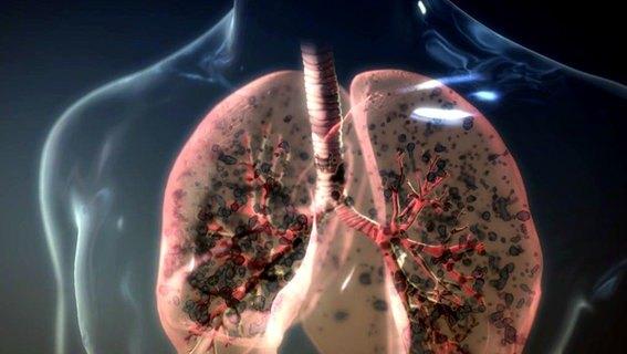 lunge-schadstoffe-reinigen.jpg
