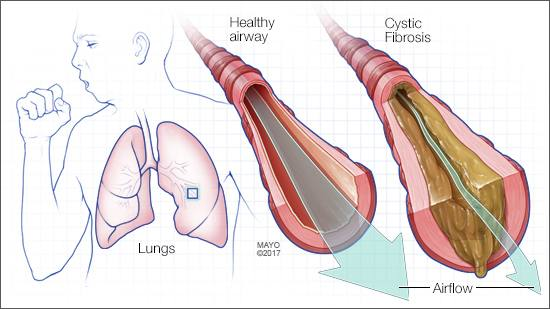 cystic fibrosis lung