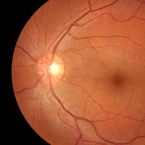 Retinopathy Identification