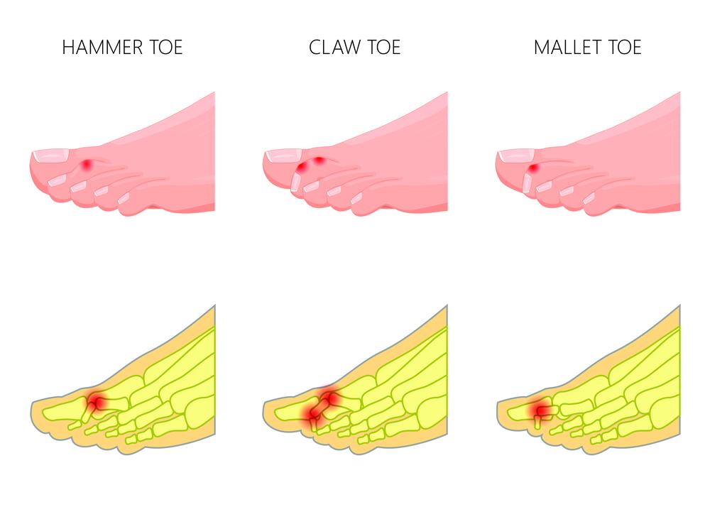 hammertoe pain treatment westminster, ca - foot doctor & hammertoe surgeon