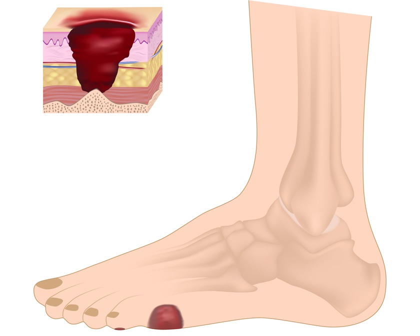 diabetic wound specialist in westminster, ca - treatment for foot infections and ulcers