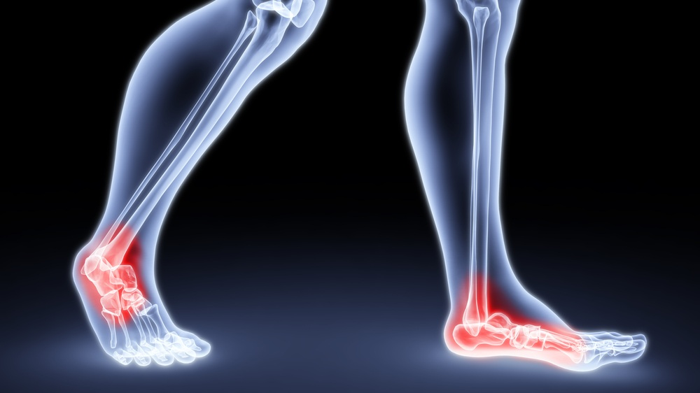 foot and ankle surgery westminster ca