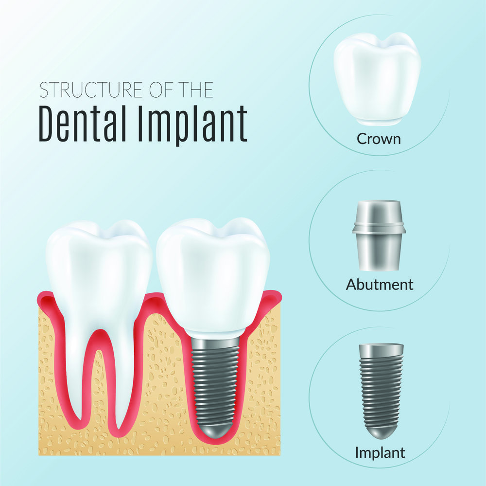 Dental Implant Infographic [Converted].jpg