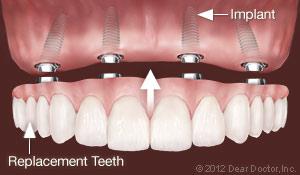 implants-replace-all-teeth.jpg