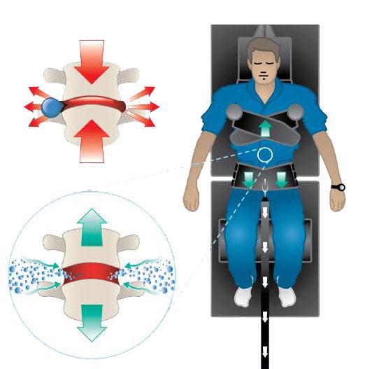 Spinal Decompression Prescott
