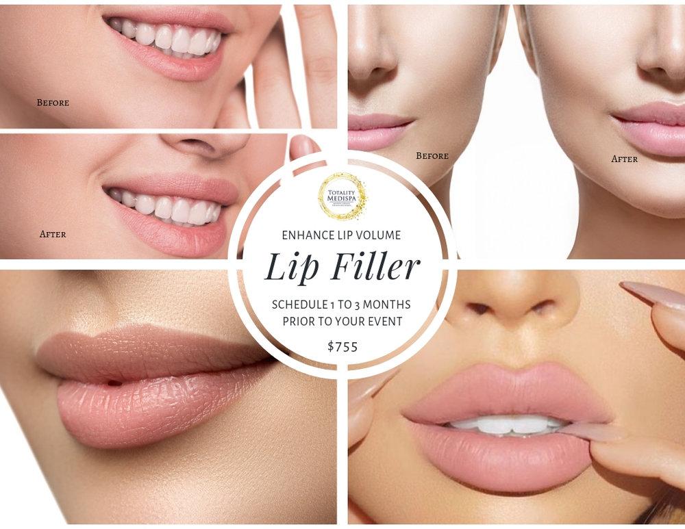 Enhance Lip Volume - Lip Filler