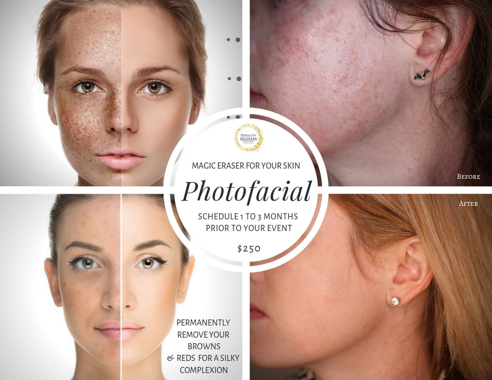 Photofacial - Magic Eraser For Your Skin