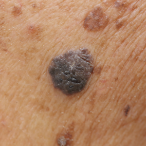 Skin Cancer Lesions