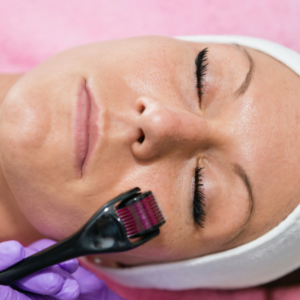 Things You Didn't Know About Microneedling
