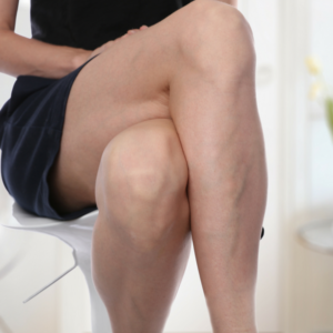 Varicose Veins Spider Veins Treated