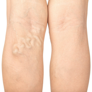 Help for Varicose Veins and Spider Veins