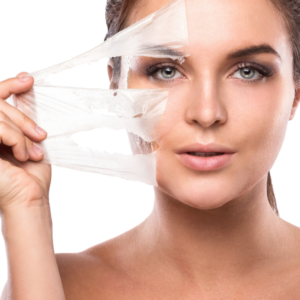 chemical peel misconceptions