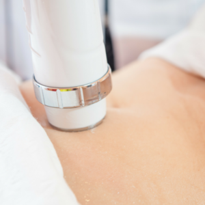 CoolSculpting Weight Loss Body Contouring