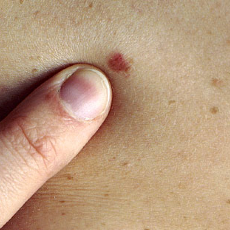Skin Cancer - MOHS Surgery, SRT treatment and more