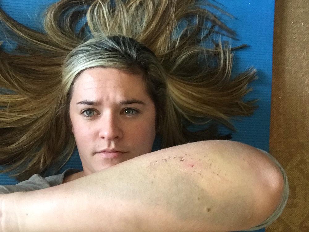 arm-injury-mtb-fall-mama-on-the-run-blog-sa.jpg