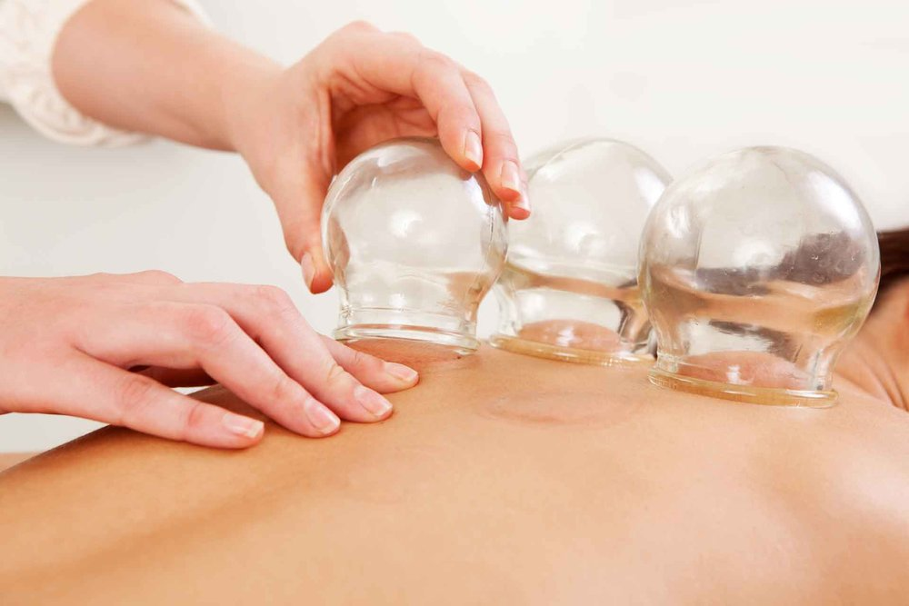 Cupping - Glass cups are suctioned to a specific area of the body to encourage blood flow, remove toxins and help with deep-rooted pain issues. While generally combined with acupuncture, this treatment is also available on its own as 30 min. ($60) & 45 min. ($80) sessions.