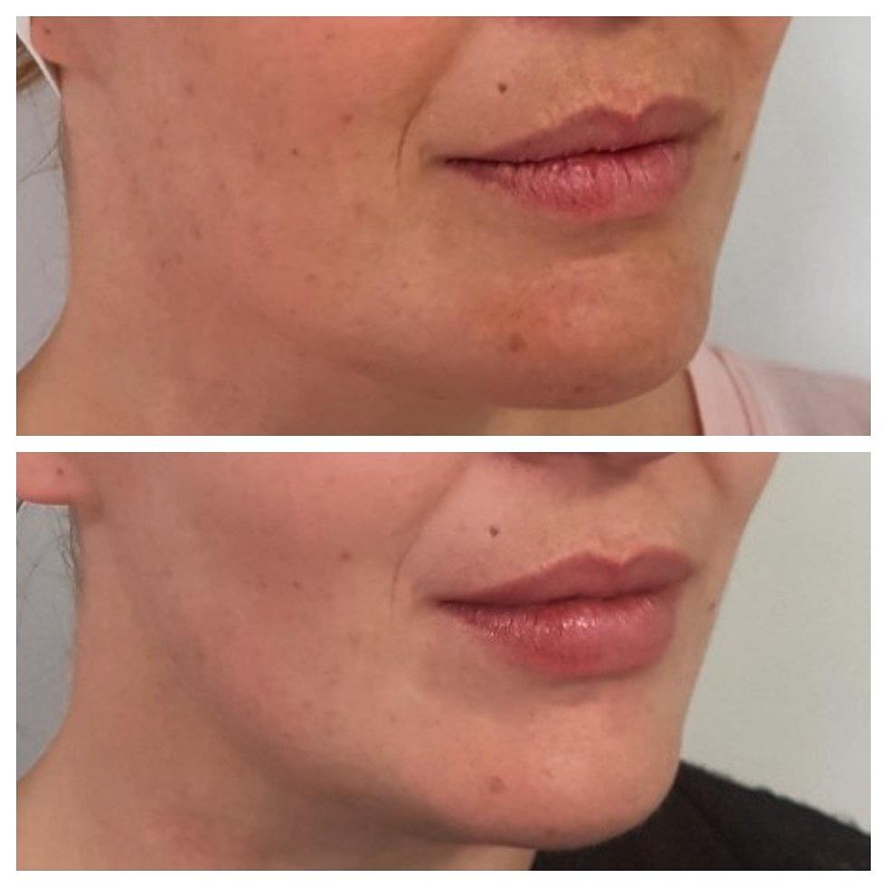 Dermal Fillers Lips and Chin Invercargill.jpg