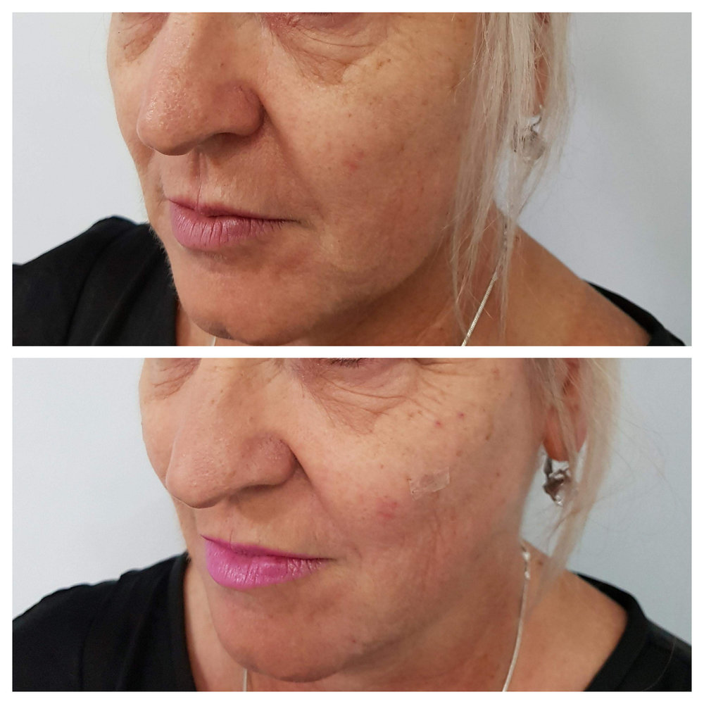 dermal filler to mid face, lateral cheeks and jowls (note lift through side of face)