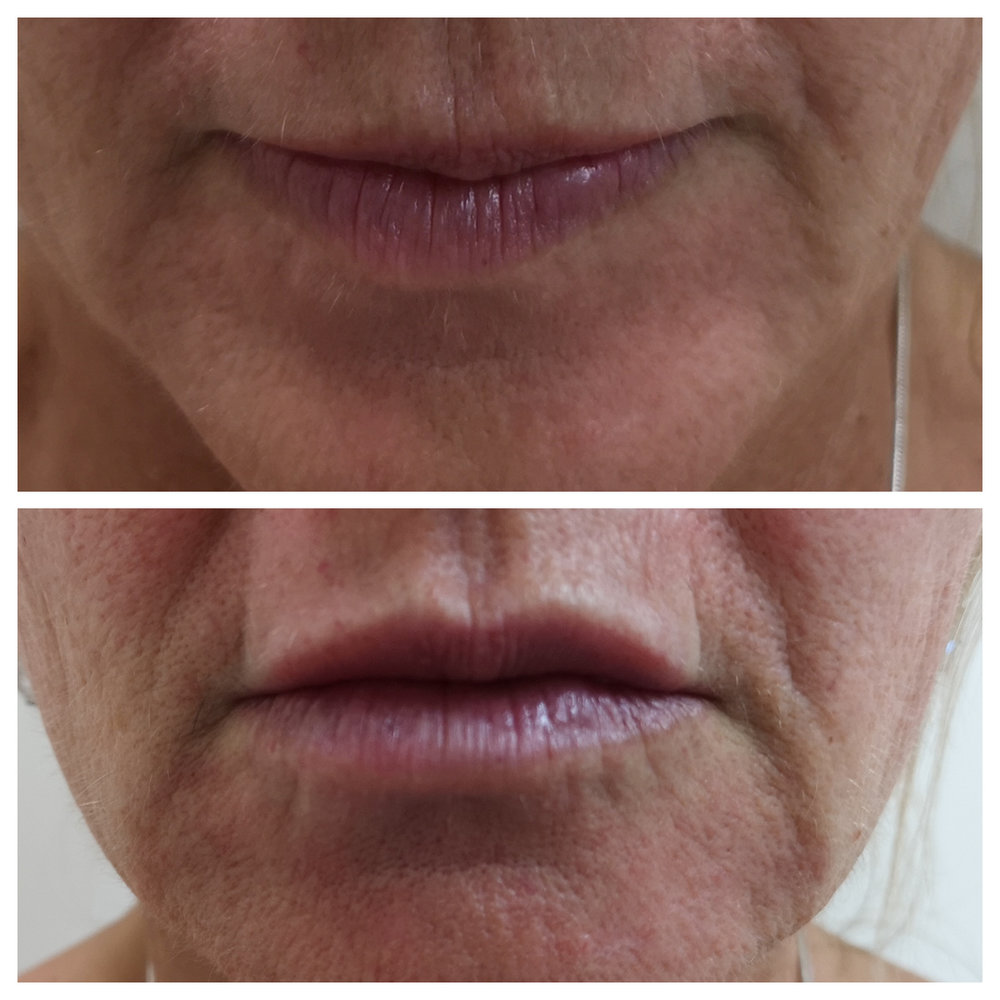 fuller natural lips - before and directly after treatment