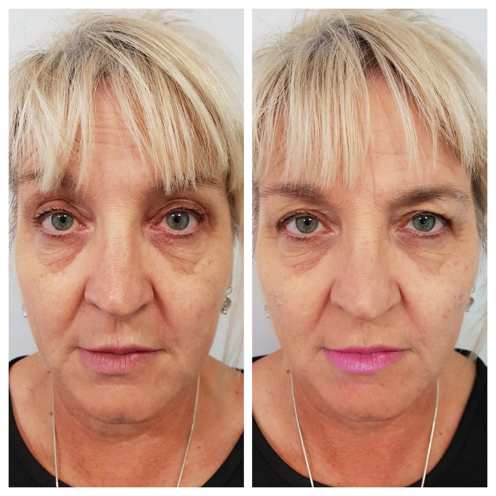 note lift created through side of patients face