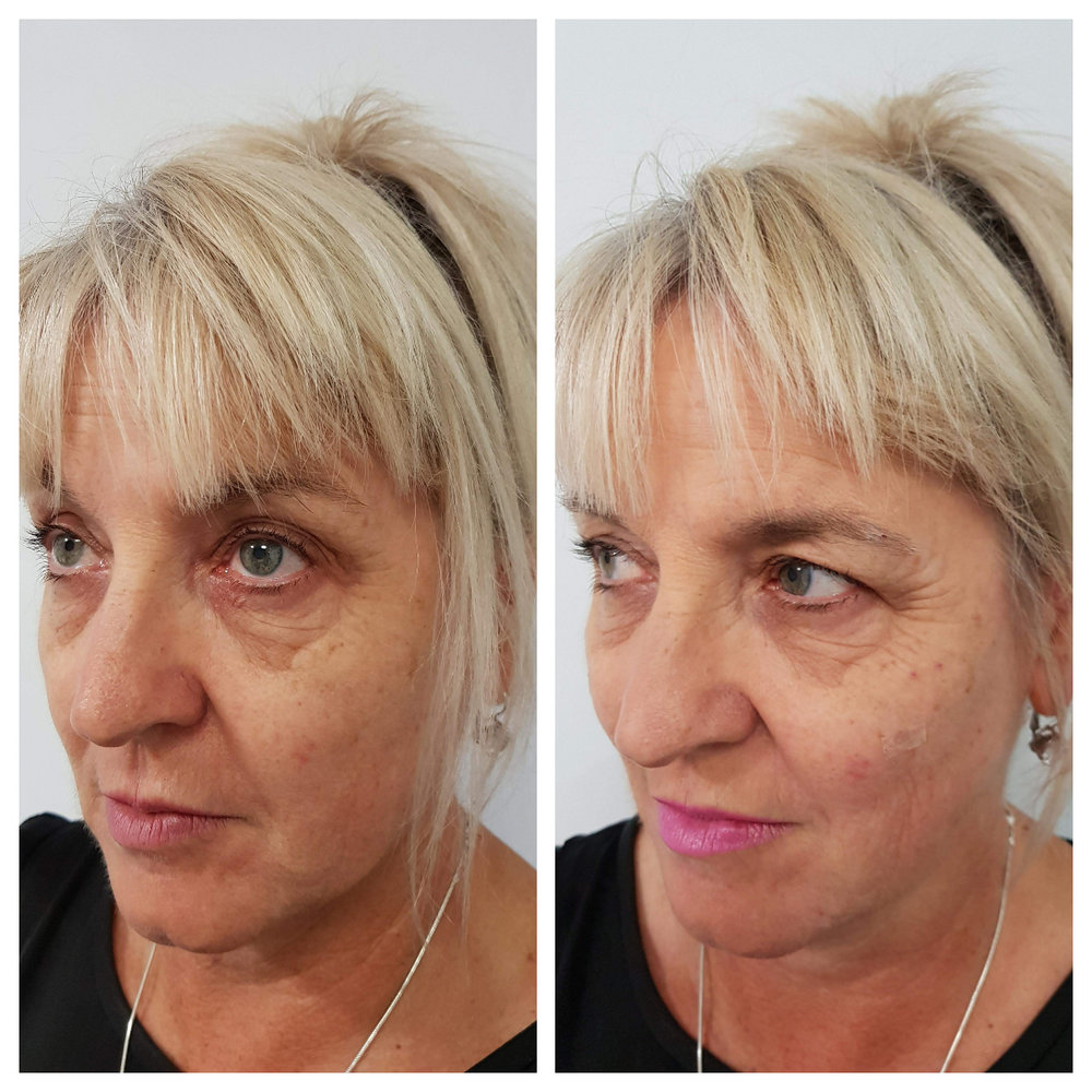 Fillers Southland CosMedic Clinic