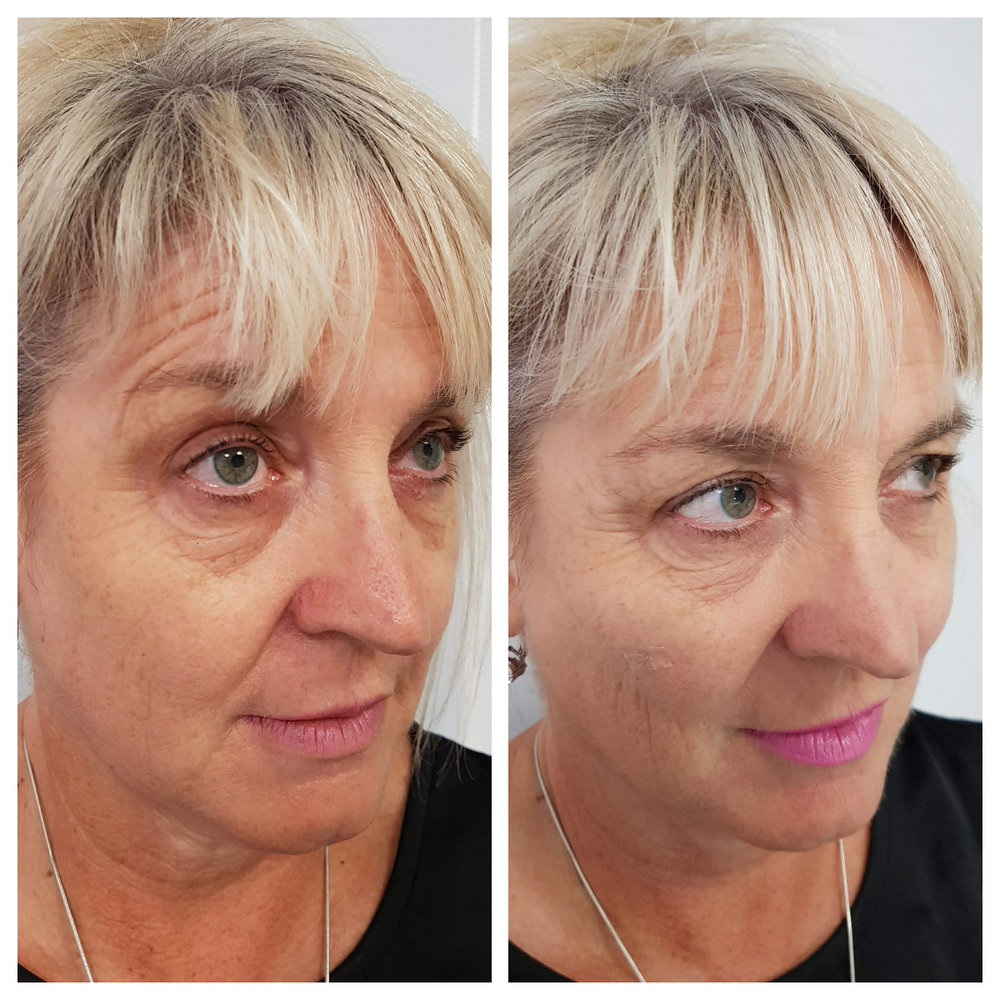 Fillers Southland Cosmedic Clinic Cost
