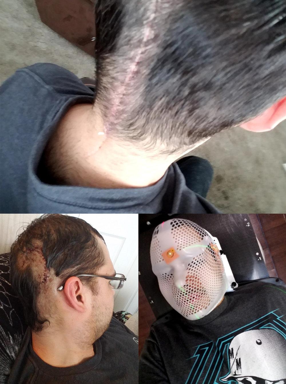 shane brain tumor.jpg