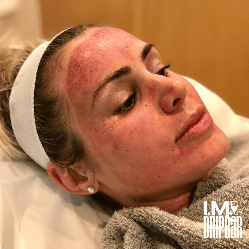 Immediately after micro-needling.
