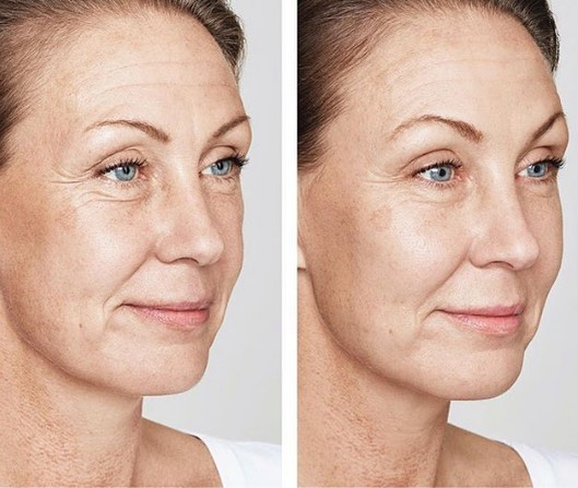 A gorgeous example of how injectables treatments have been used to restore the cheeks & fill fine lines around the eyes, resulting in a fresher, more youthful appearance. #injectables #youthfulskin #immersionclinicalspa
