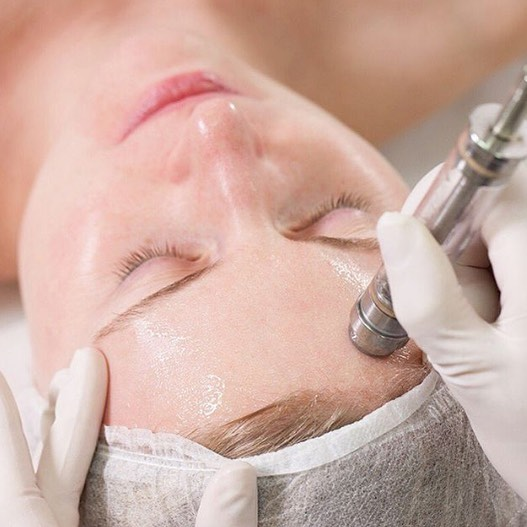 Repost from @ultraceuticals as it was too good not to share! Have you tried Microdermabrasion? This advanced in-clinic exfoliation technique removes dead skin cells and increases cellular turnover leaving the skin looking more radiant, smooth and youthful. Introduce your skin to Immersion Clinical Spa & never look back! With Mother's Day around the corner - this treatment is a gorgeous gift idea. #immersionclinicalspa #Microdermabrasion #skinrejuvenation #skinrepair #reviverefreshstore 💚🌱
